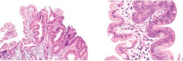 Аденоми на тънкото черво - изображение