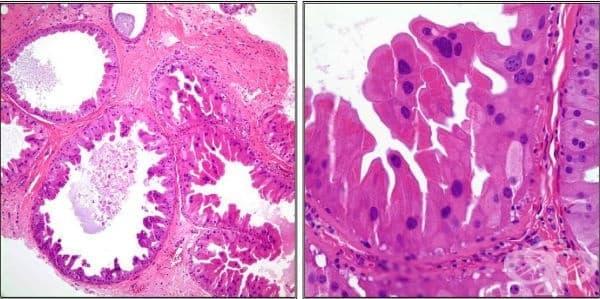 Апокринна метаплазия на гърдата - изображение