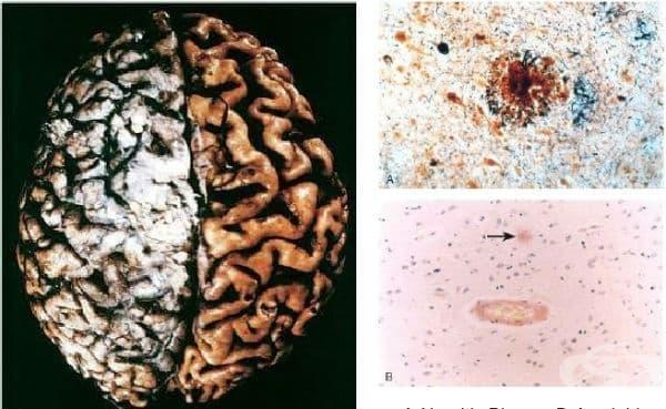 Атрофия на мозъка - изображение