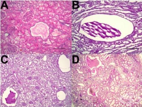 Автозомно доминантно поликистозно бъбречно заболяване - изображение