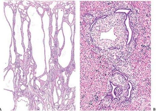 Автозомно рецесивно поликистозно бъбречно заболяване - изображение
