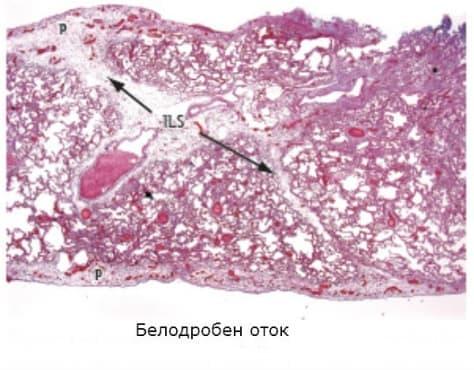 Белодробен оток - изображение