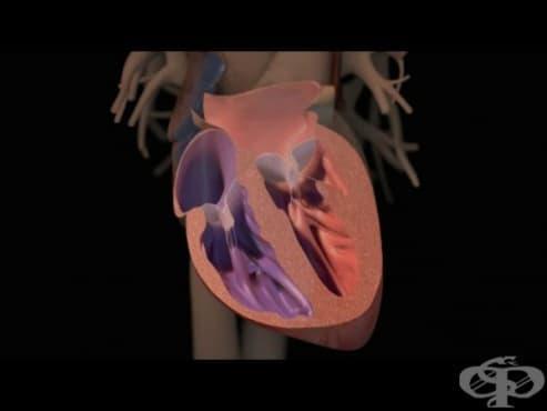 Десностранна сърдечна недостатъчност - изображение