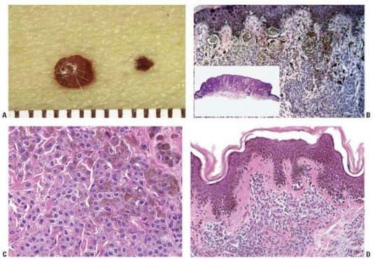 Доброкачествени меланинообразуващи тумори - изображение