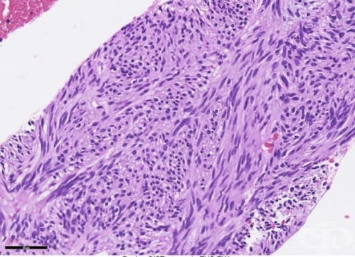 Доброкачествени тумори на стомаха - изображение