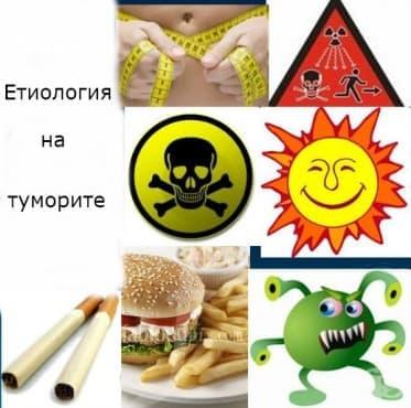 Етиология на туморите - изображение