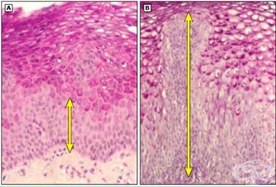 Гастроезофагеална рефлуксна болест - изображение