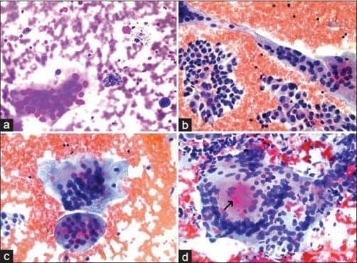 Грануломатозен тиреоидит - изображение