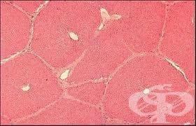 Клинична патология на черния дроб - изображение