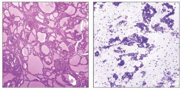 Клинична патология на хипертиреоидизъм - изображение