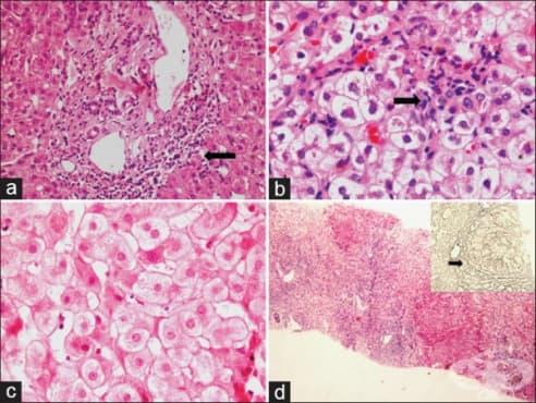 Хроничен хепатит - изображение