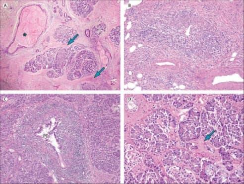 Клинична патология при хроничен панкреатит - изображение