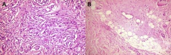 Инвазивен фиброзен тиреоидит - изображение