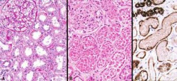 Клинична патология на исхемична остра тубулна некроза - изображение