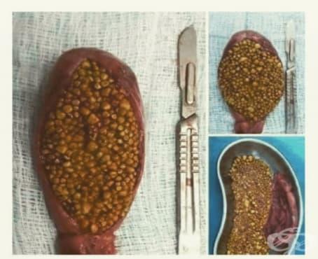 Жлъчнокаменна болест - изображение