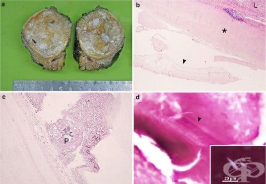 Клинична патология на ехинококоза - изображение