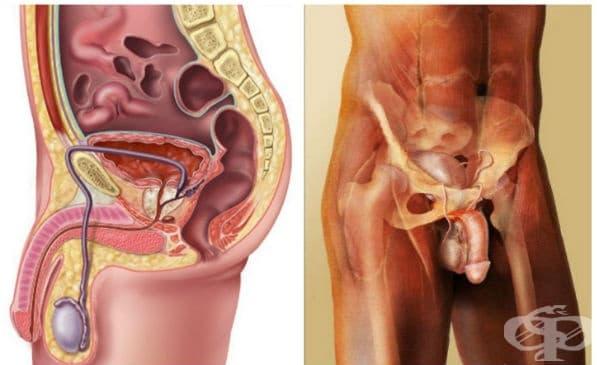Клинична патология на мъжката полова система - изображение