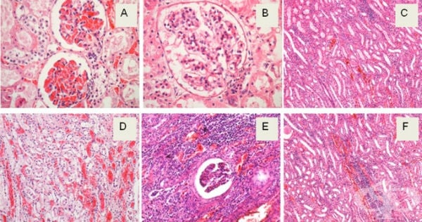 Клинична патология на вирусна хеморагична треска - изображение