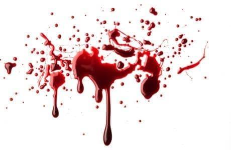 Кръвоизлив - изображение