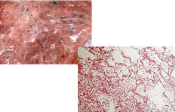 Лобуларна пневмония - изображение