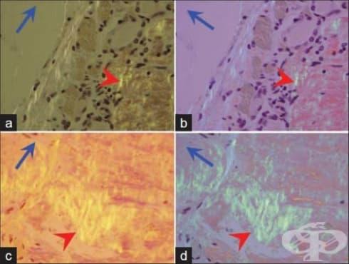 Локализирана амилоидоза - изображение