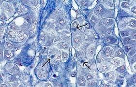 Свръхнормно натрупване на протеини в клетката - изображение