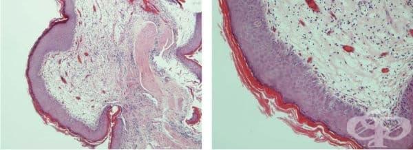 Метаплазия на пикочния мехур - изображение