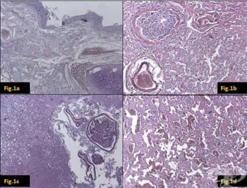 Клинична патология на морбили - изображение
