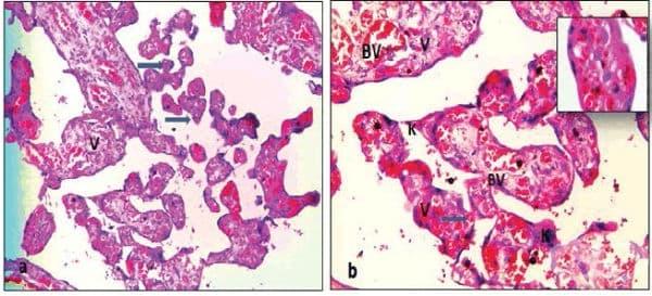 Клинична патология при нарушение на плацентарното кръвообращение - изображение