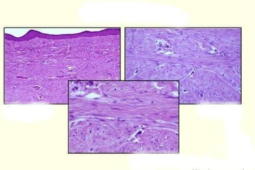 Нарушение в синтезата на колагена - изображение
