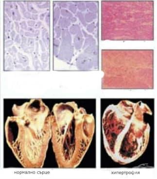 Остра и хронична сърдечна недостатъчност - изображение