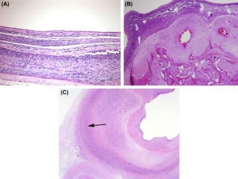 Клинична патология при остри възпалителни изменения в плацентата - изображение