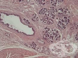 Клинична патология на панкреаса - изображение