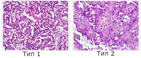 Папиларен бъбречноклетъчен карцином - изображение