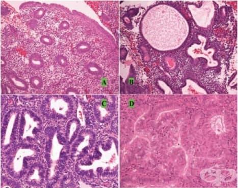 Патологична хиперплазия - изображение