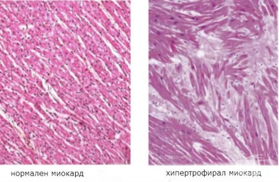 Патологична хипертрофия на миокарда - изображение