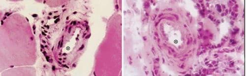 Патология на съединителната тъкан - изображение