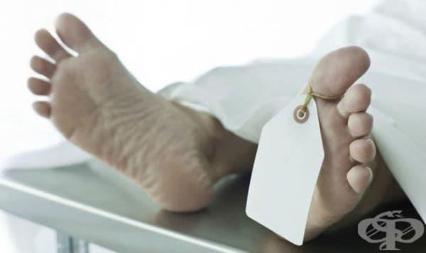 Патоморфологични белези на биологичната смърт - изображение