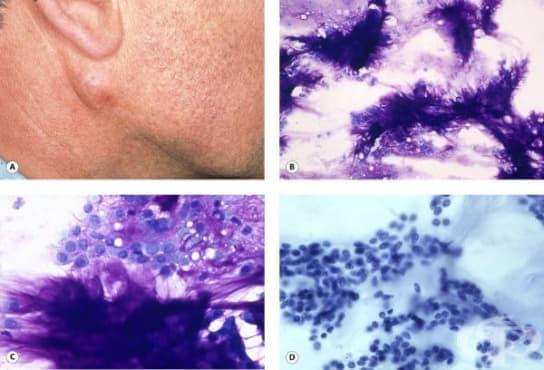 Плеоморфен аденом - изображение