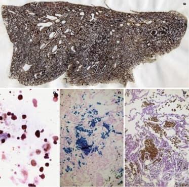 Клинична патология при пневмокониози - изображение