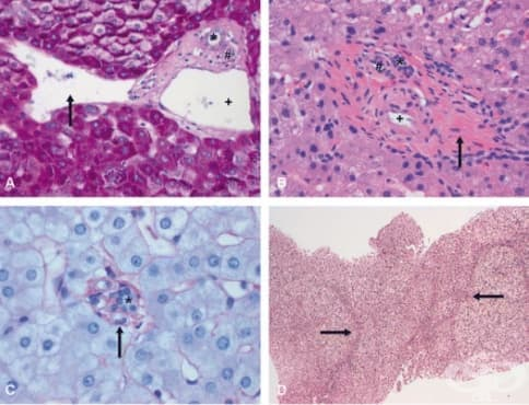 Портална хипертония - изображение
