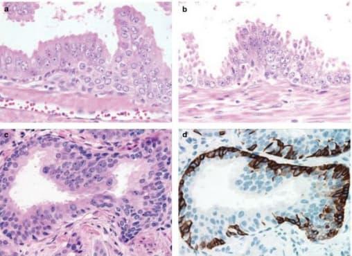 Простатна интраепителна неоплазия - изображение