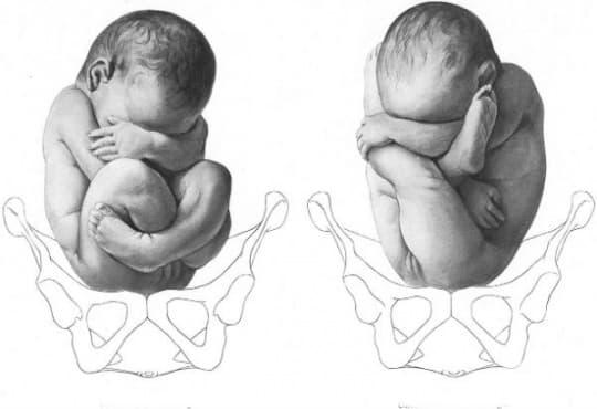 Родова травма - изображение