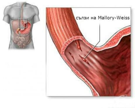 Синдром на Mallory-Weiss  - изображение