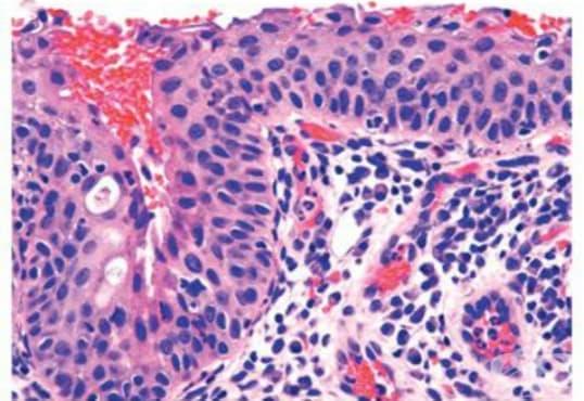 Сквамозна метаплазия на маточната шийка - изображение