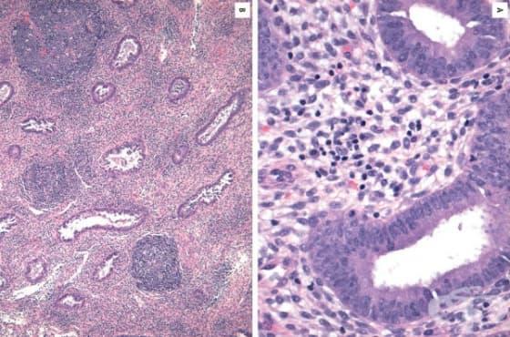 Клинична патология при следродова инфекция - изображение