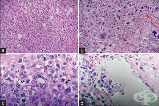 Трофобластен тумор на плацентарното място - изображение