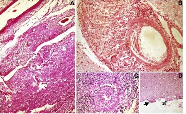 Туберкулозен менингит - изображение