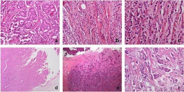 Клинична патология при тумор на гърдата при мъжа - изображение