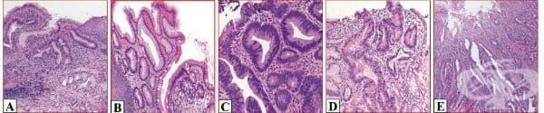 Тумори на хранопровода - изображение